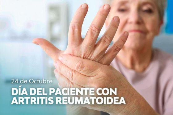 Se conmemora hoy, el Día del Paciente con Artritis Reumatoidea en Argentina